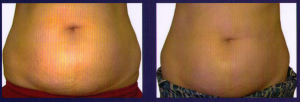 You do not have to shy away because of Stretch Marks – Treat them early
