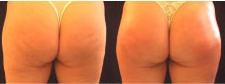 cellulite-skin-tightening-3
