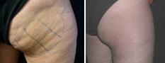 cellulite-skin-tightening-4