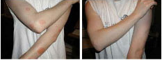 eczema-dermatitis-2