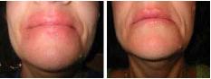eczema-dermatitis-3