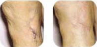 leg-varicose-veins-2