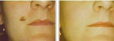 lumps-bumps-moles-1