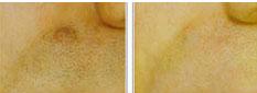 lumps-bumps-moles-2