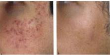 pigmentation-acne-treatments-1