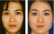 range-of-skin-peels-4