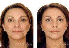 restylane-lip-enhancement-3
