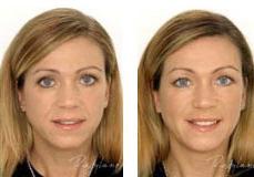 restylane-lip-enhancement-4