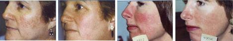 rosacea-facial-thread-veins-2