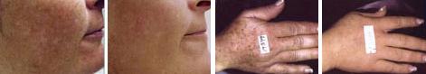 sun-damaged-skin-age-spots-2