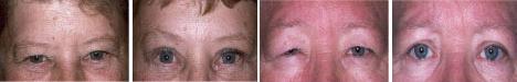 upper-eye-lid-bag-removal-2
