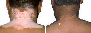 vitiligo-leucoderma-psorasis